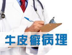牛皮癣患者的发病机理是什么