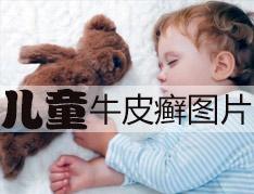 儿童银屑病疾病经常复发怎么办