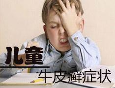 儿童牛皮癣的症状有哪些呢