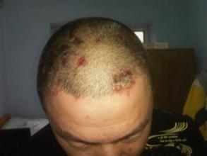 头部牛皮癣疾病发生的原因都有哪些