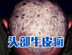 头部牛皮癣的诊断措施有哪些?